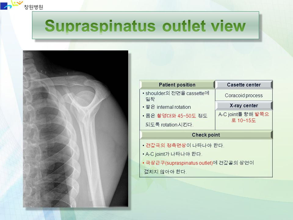 Supraspinatus outlet view