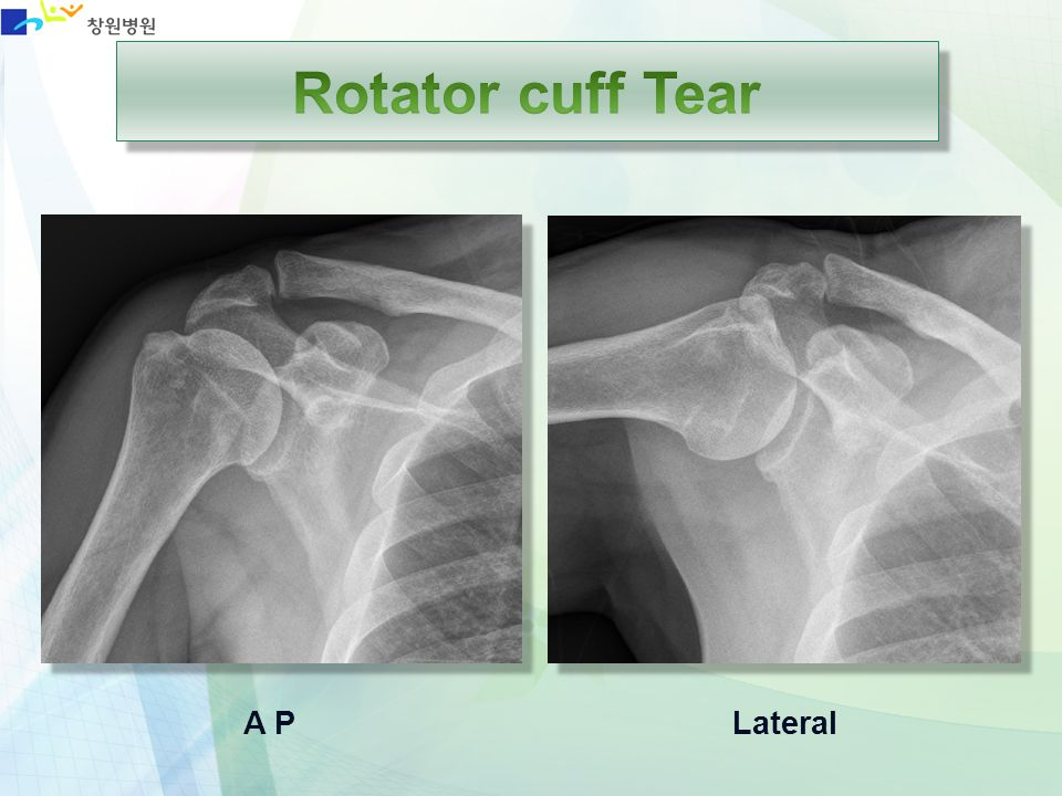 Rotator cuff Tear A P Lateral