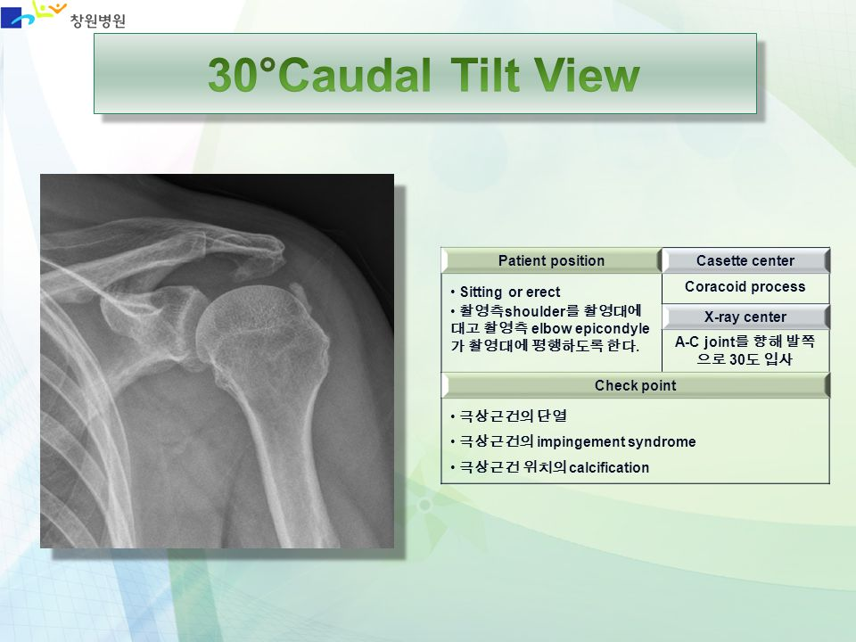 30°Caudal Tilt View Patient position Casette center Sitting or erect