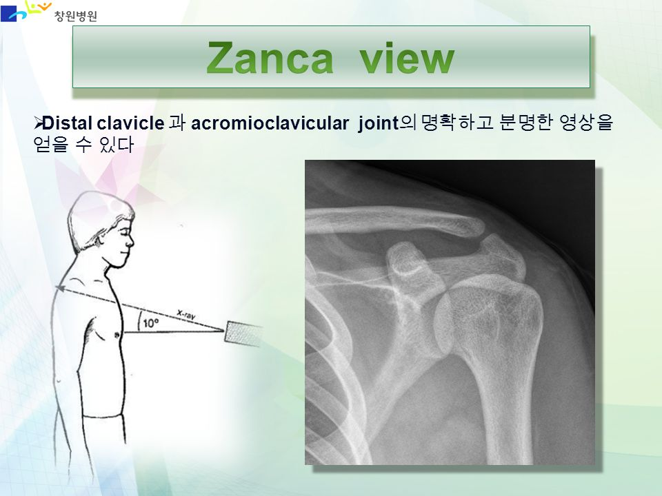 Zanca view Distal clavicle 과 acromioclavicular joint의 명확하고 분명한 영상을 얻을 수 있다
