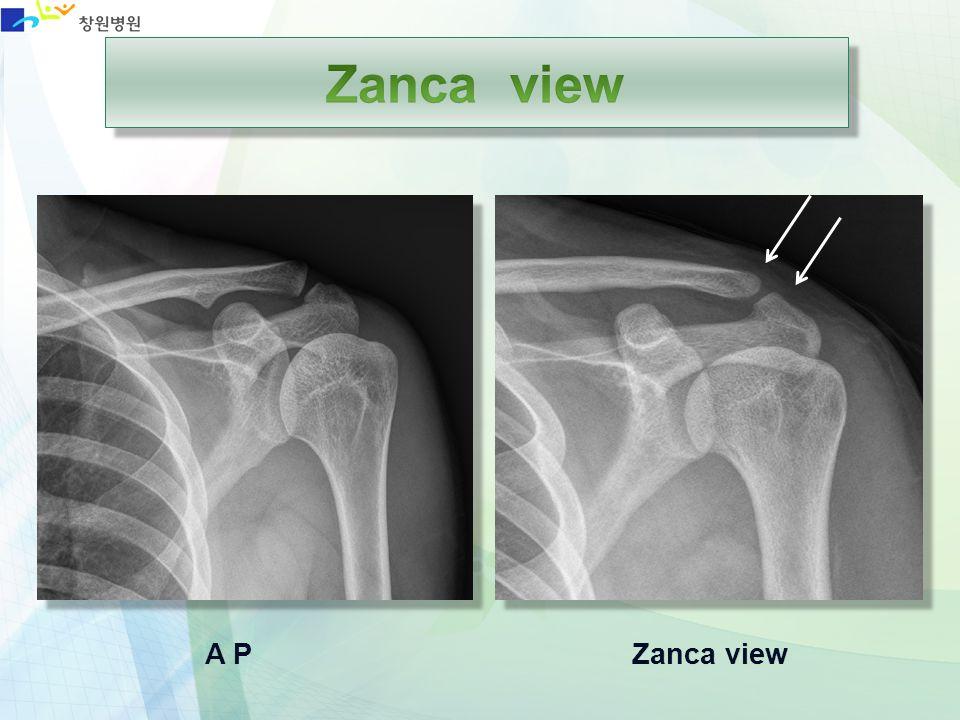 Zanca view A P Zanca view
