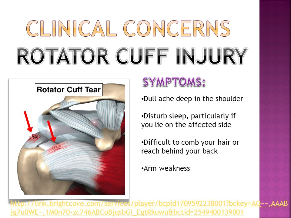 CLINICAL CONCERNS ROTATOR CUFF INJURY SYMPTOMS: