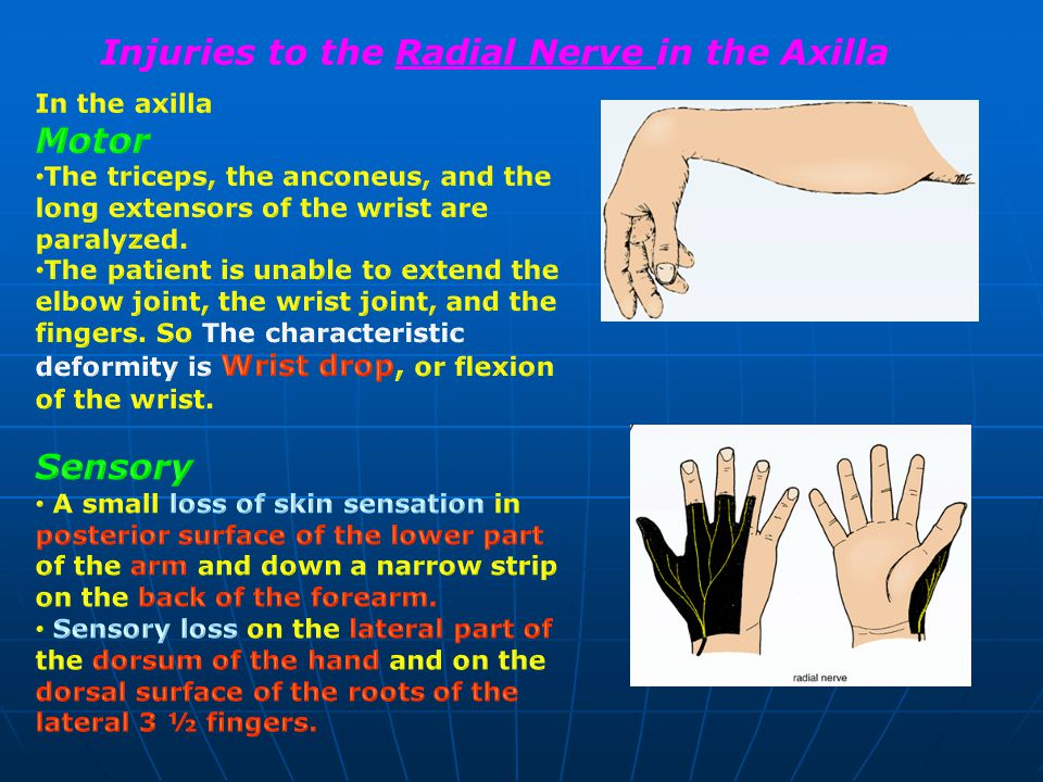 Injuries to the Radial Nerve in the Axilla