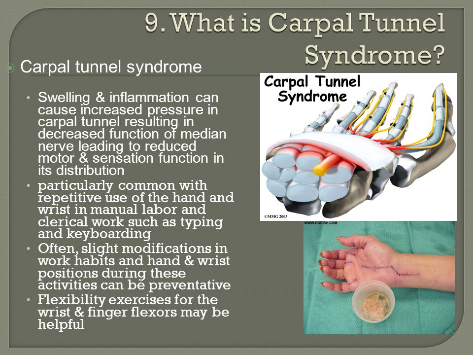 9. What is Carpal Tunnel Syndrome