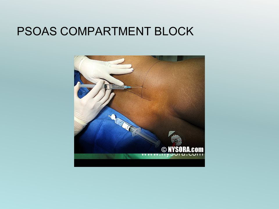 PSOAS COMPARTMENT BLOCK