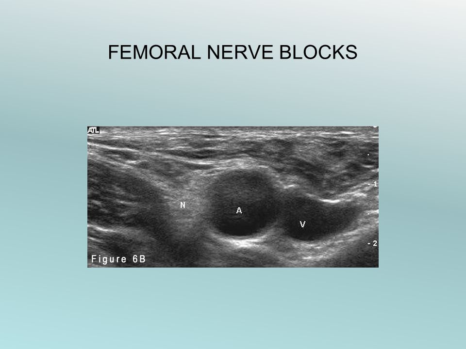 FEMORAL NERVE BLOCKS