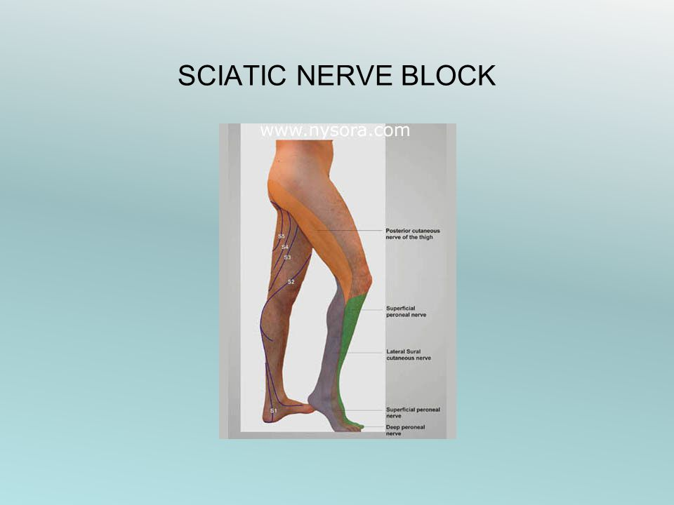 SCIATIC NERVE BLOCK