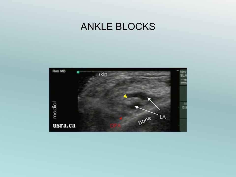 ANKLE BLOCKS