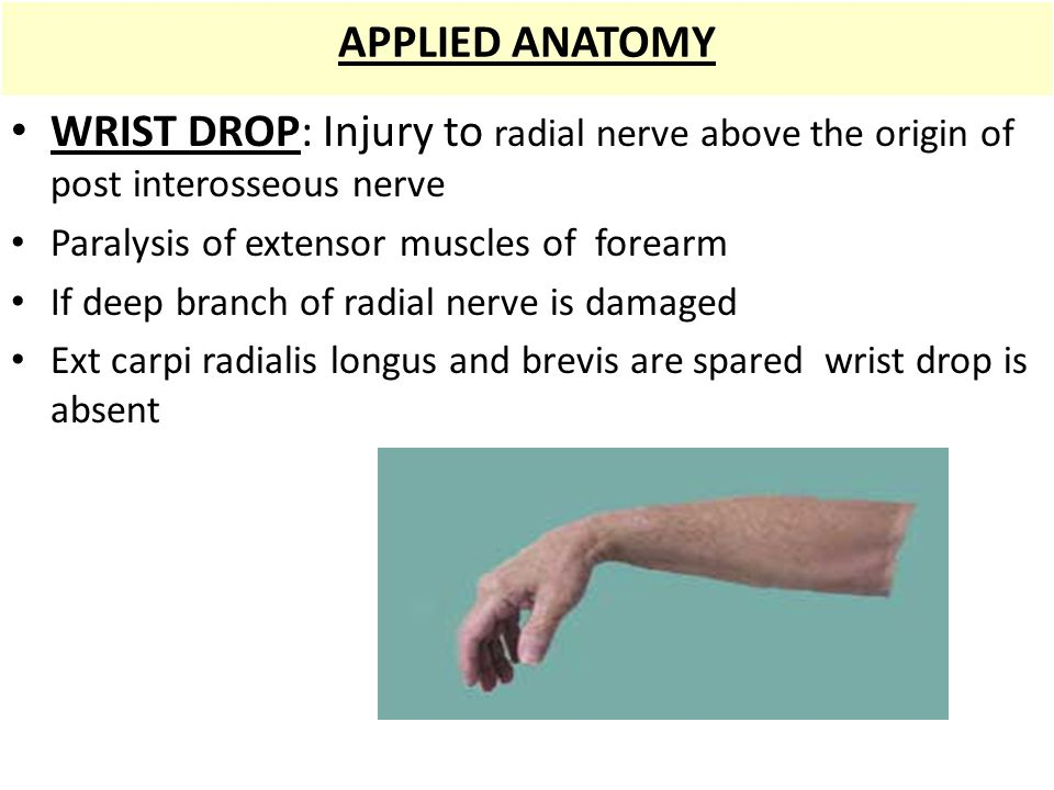 APPLIED ANATOMY WRIST DROP: Injury to radial nerve above the origin of post interosseous nerve. Paralysis of extensor muscles of forearm.