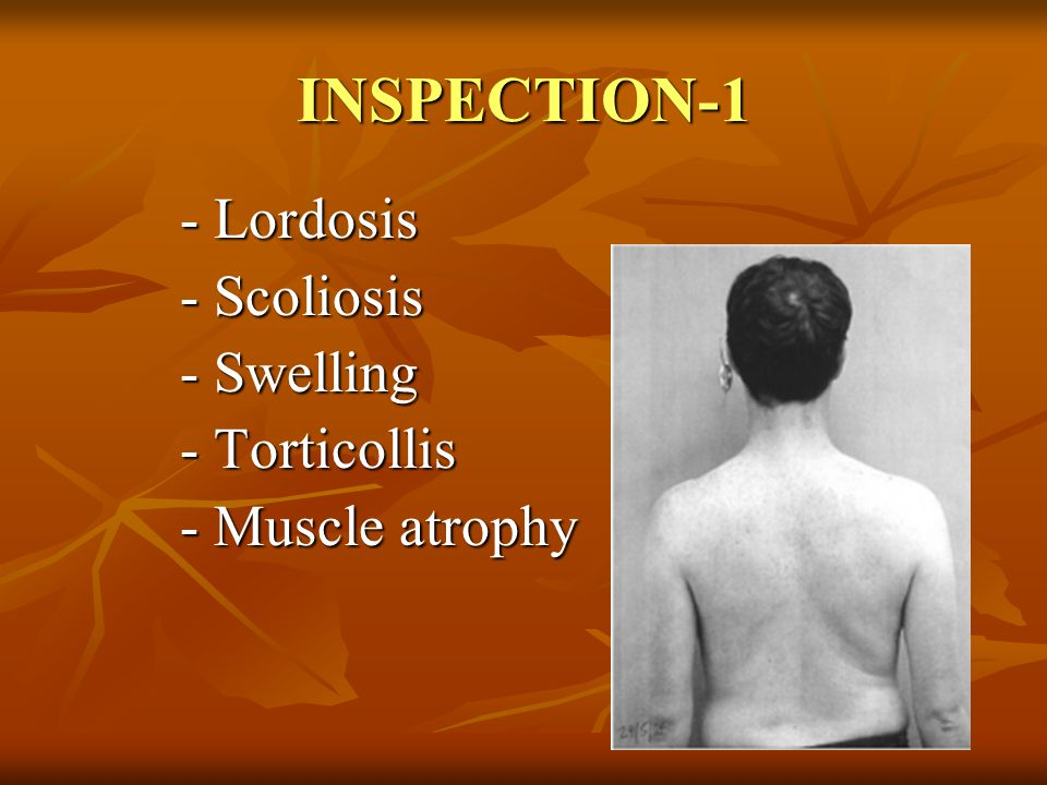 INSPECTION-1 - Lordosis - Scoliosis - Swelling - Torticollis