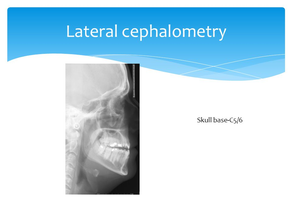 Lateral cephalometry Skull base-C5/6