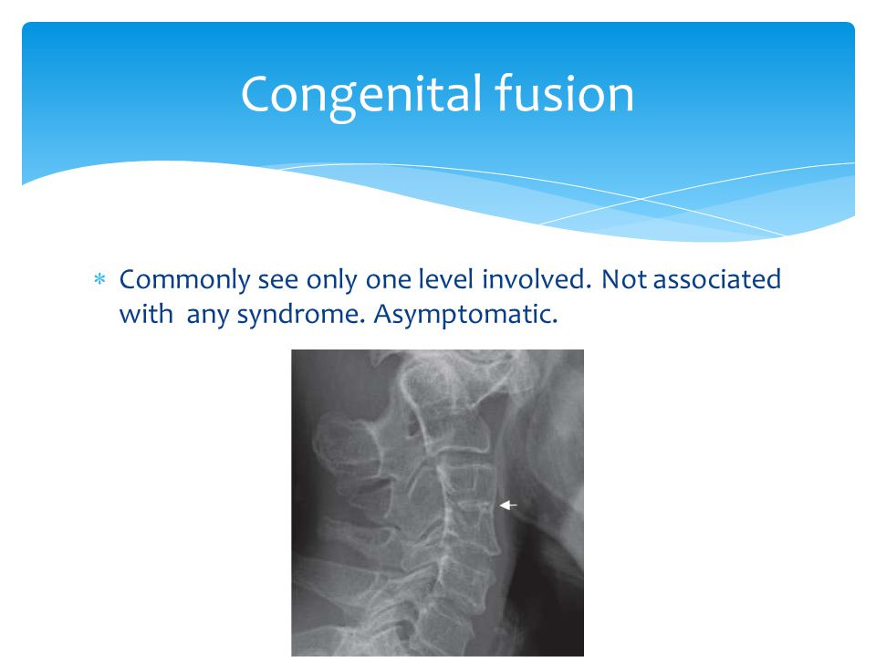 Congenital fusion Commonly see only one level involved.
