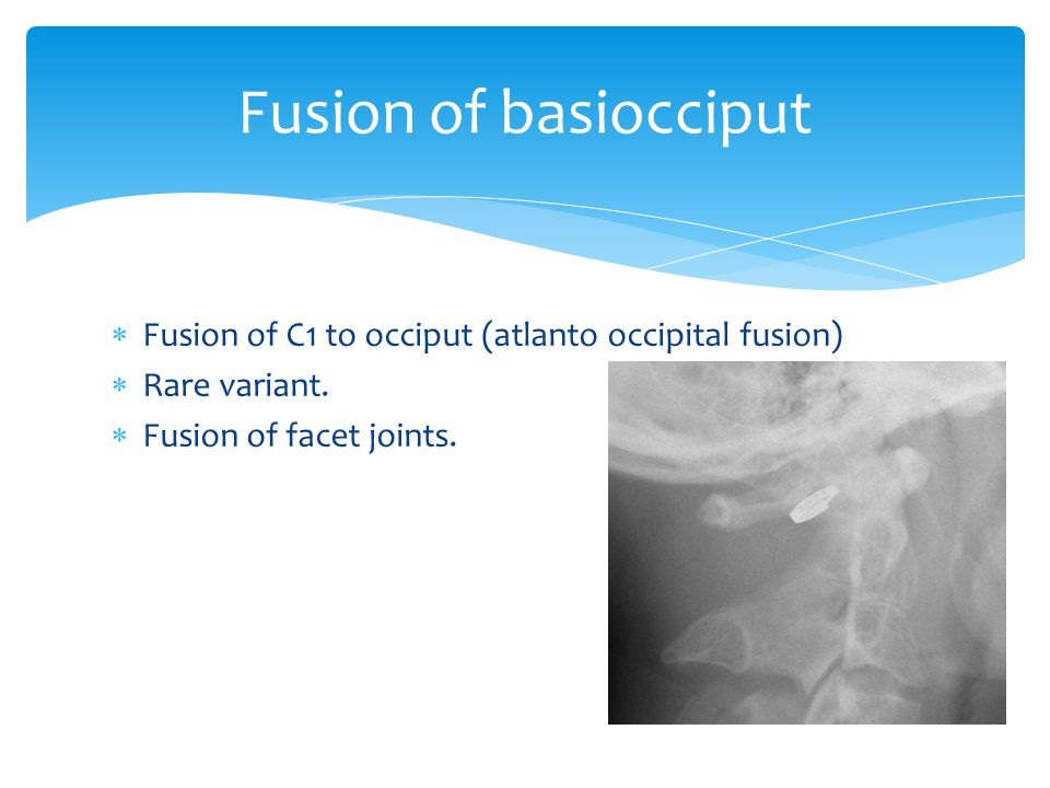 Fusion of basiocciput Fusion of C1 to occiput (atlanto occipital fusion) Rare variant.