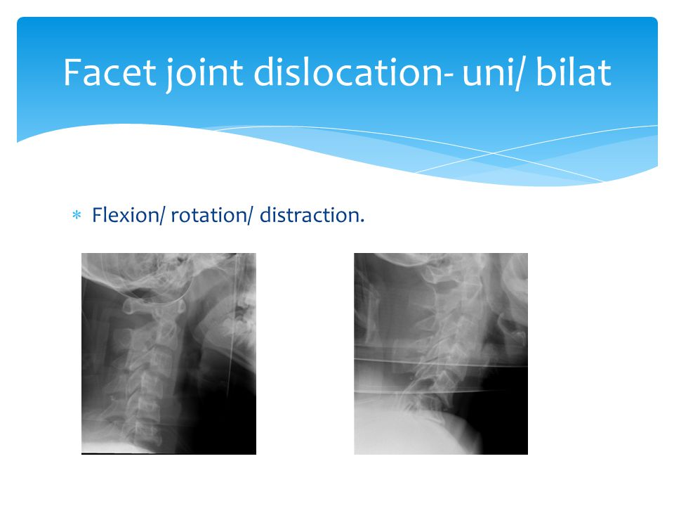 Facet joint dislocation- uni/ bilat