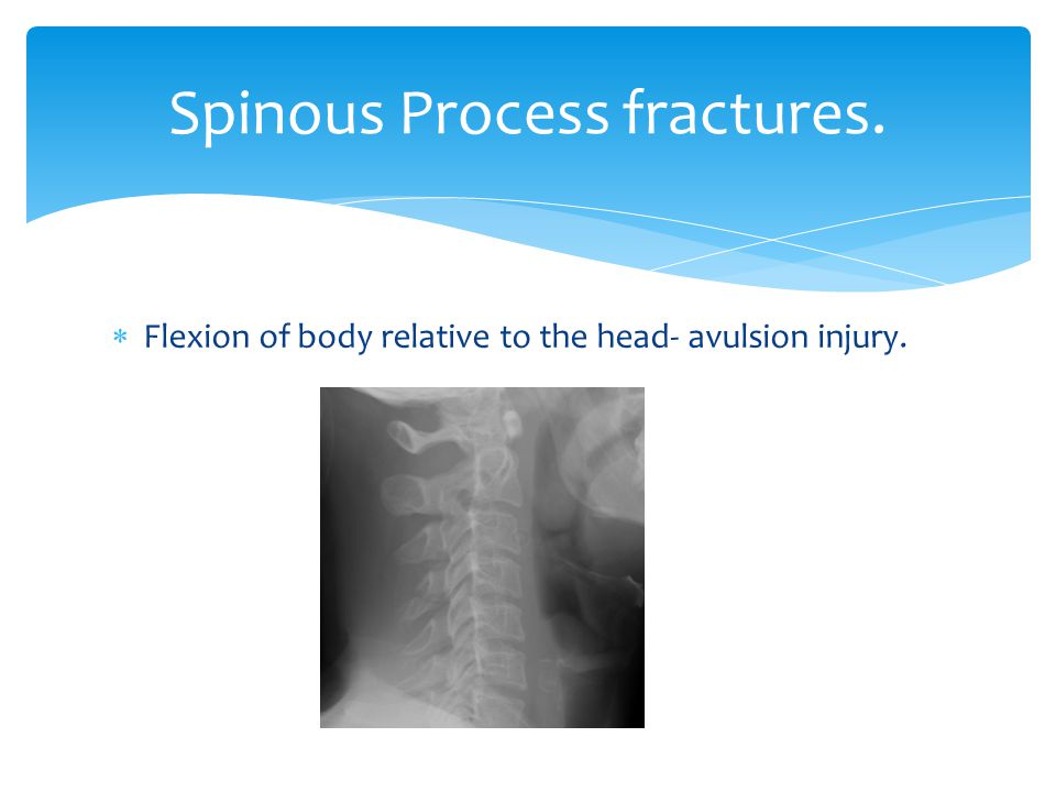 Spinous Process fractures.