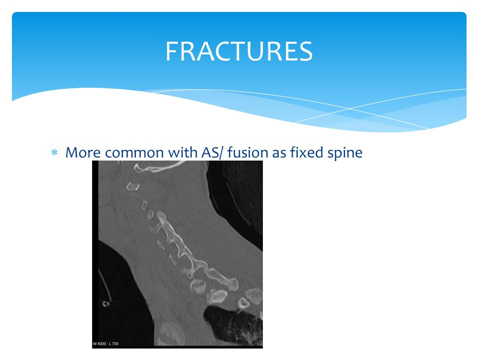 FRACTURES More common with AS/ fusion as fixed spine
