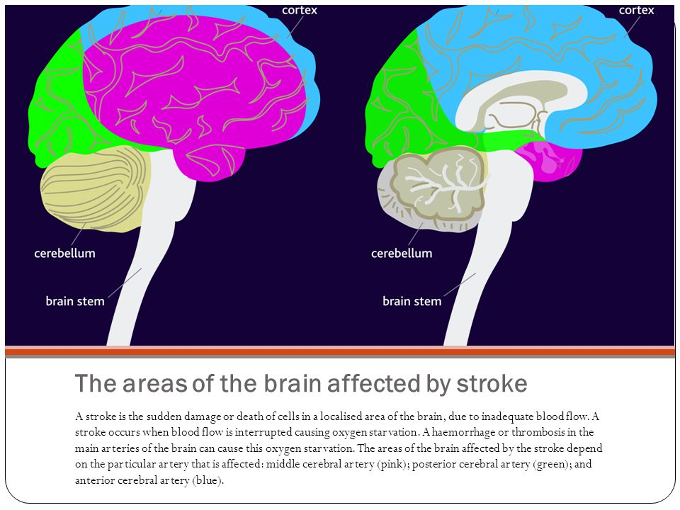 The areas of the brain affected by stroke