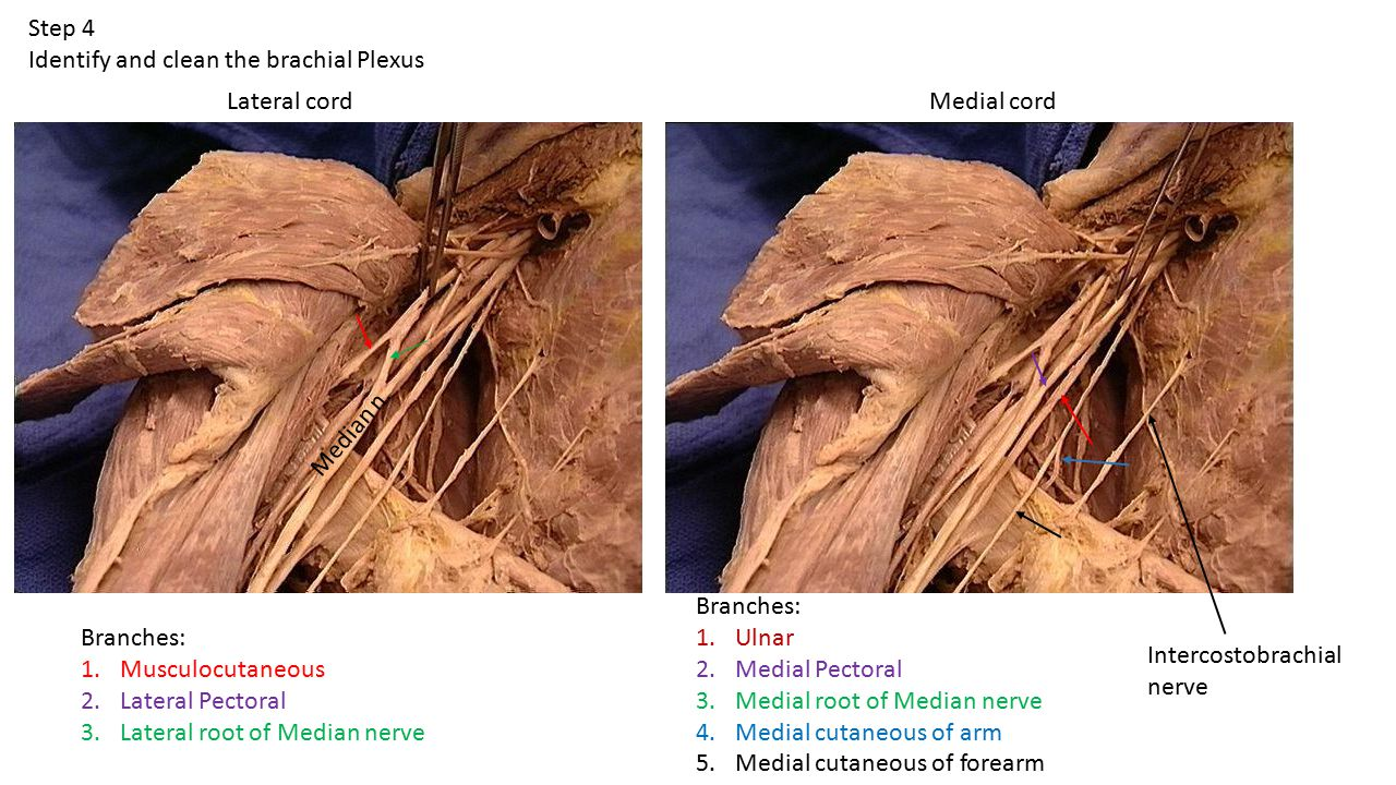 Step 4 Identify and clean the brachial Plexus. Lateral cord. Medial cord. Median n. Branches: Ulnar.