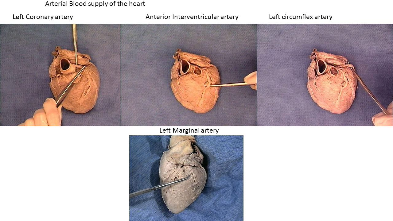 Arterial Blood supply of the heart