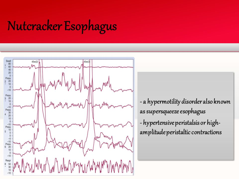 Nutcracker Esophagus - a hypermotility disorder also known as supersqueeze esophagus.