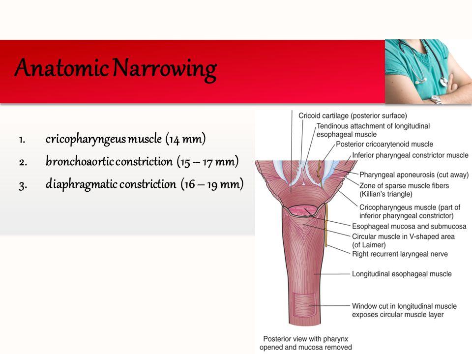 Anatomic Narrowing cricopharyngeus muscle (14 mm)