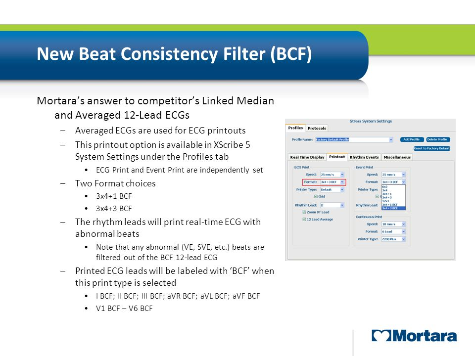 New Beat Consistency Filter (BCF)