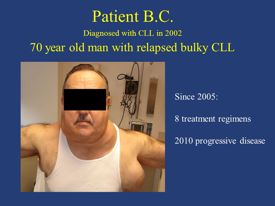 Patient B.C. Diagnosed with CLL in 2002