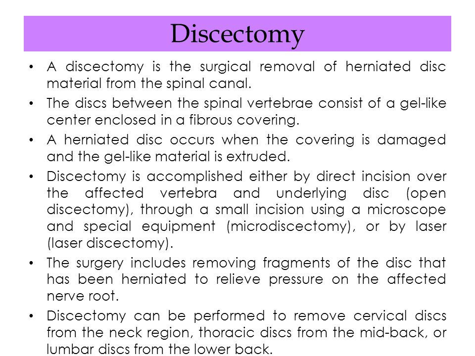 Discectomy A discectomy is the surgical removal of herniated disc material from the spinal canal.