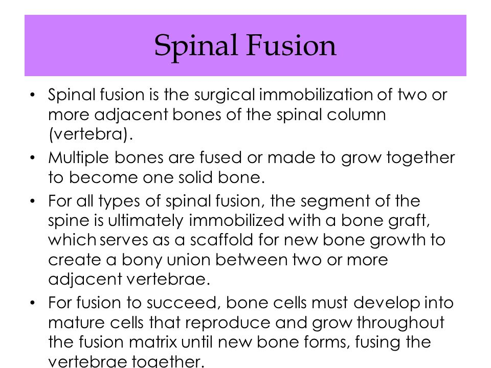 Spinal Fusion Spinal fusion is the surgical immobilization of two or more adjacent bones of the spinal column (vertebra).