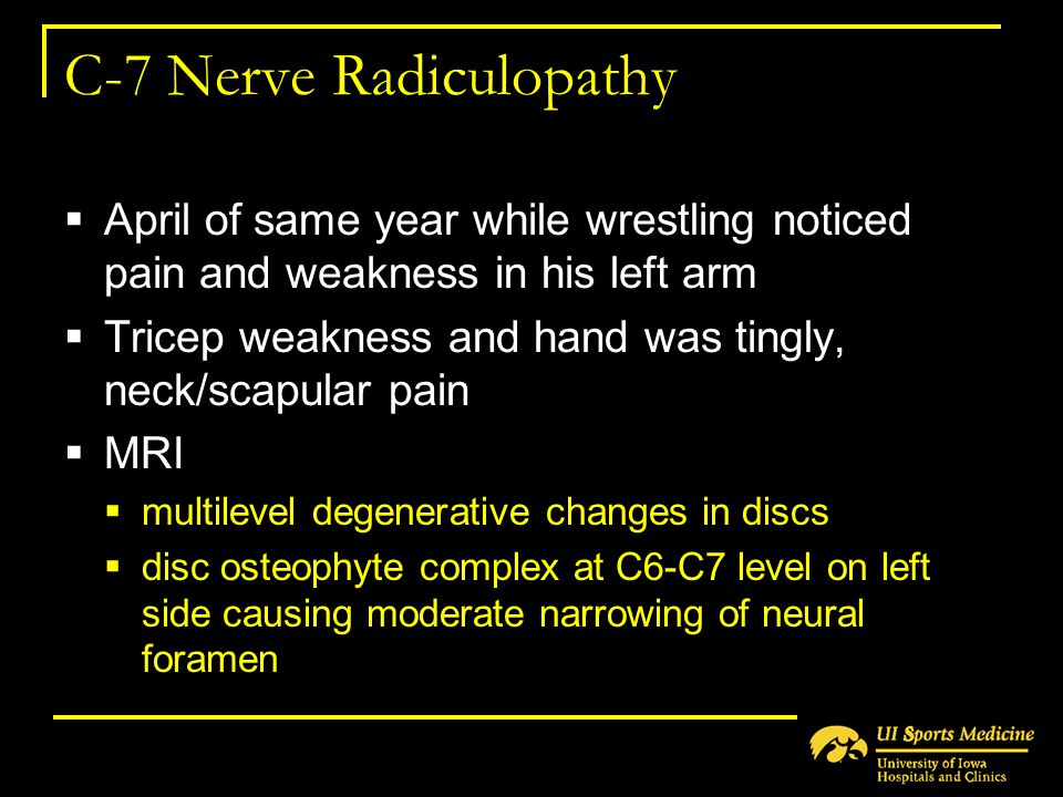 C-7 Nerve Radiculopathy