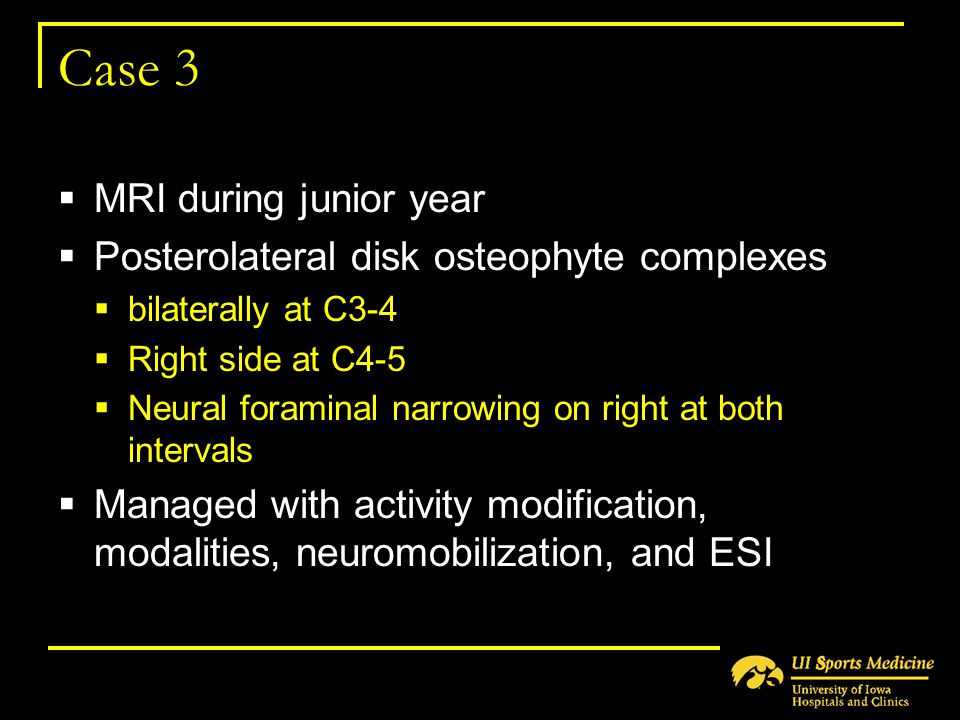 Case 3 MRI during junior year Posterolateral disk osteophyte complexes