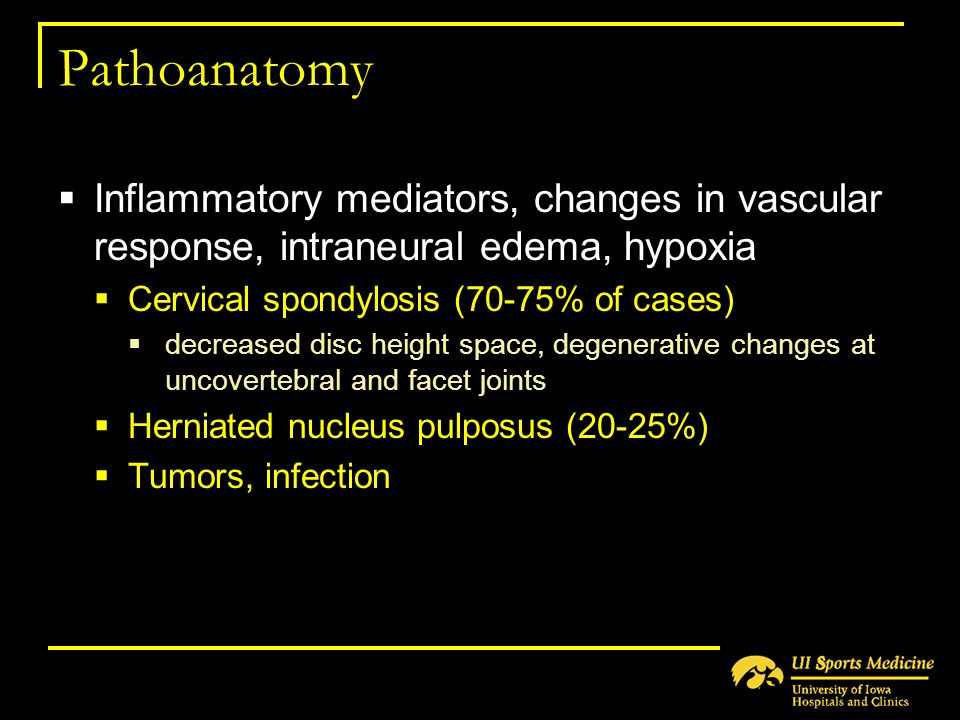 Pathoanatomy Inflammatory mediators, changes in vascular response, intraneural edema, hypoxia. Cervical spondylosis (70-75% of cases)