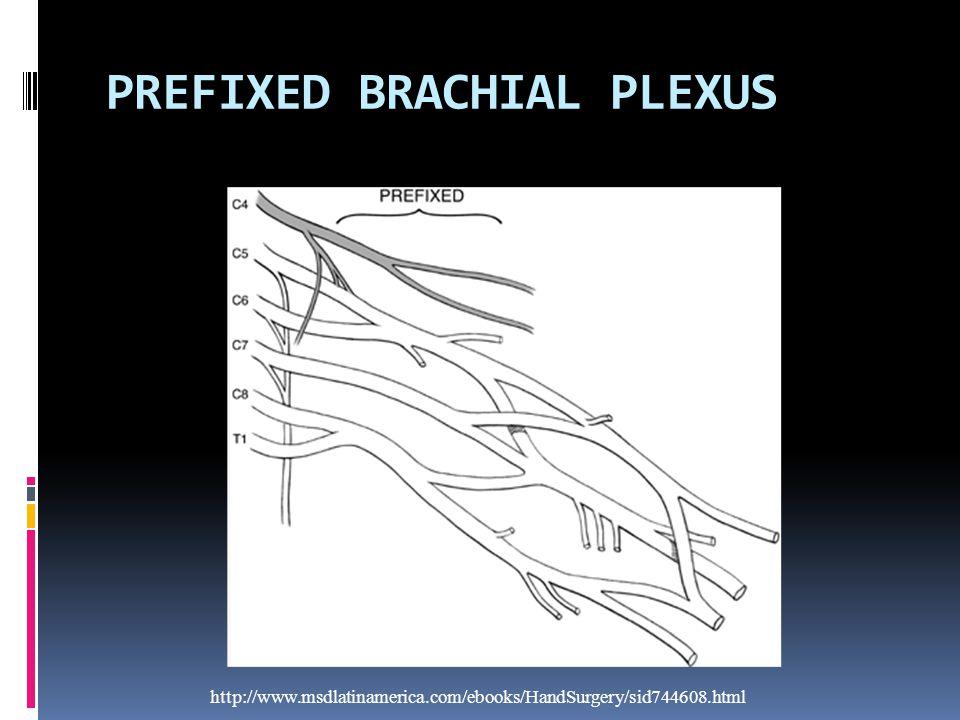 PREFIXED BRACHIAL PLEXUS