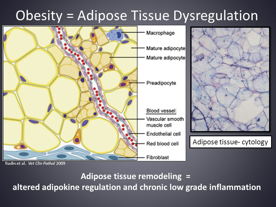 Obesity = Adipose Tissue Dysregulation