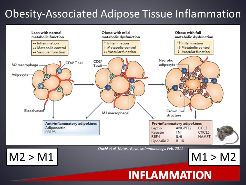 Obesity-Associated Adipose Tissue Inflammation