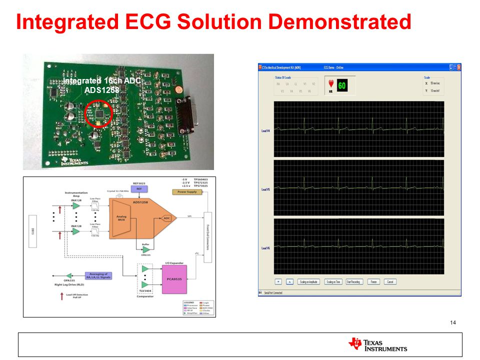 Integrated ECG Solution Demonstrated