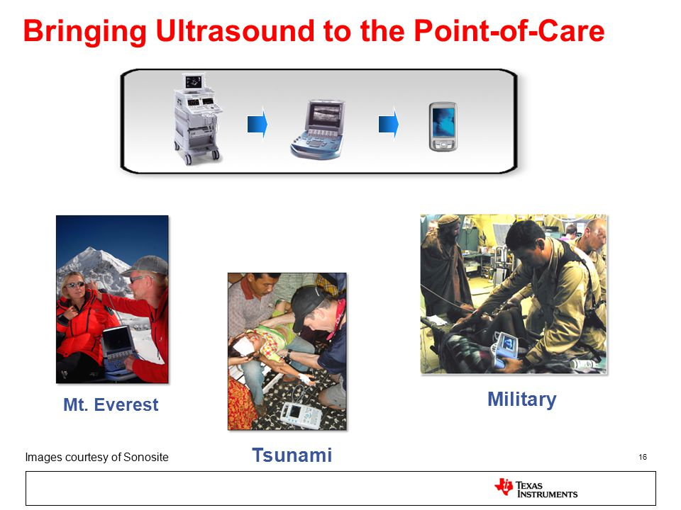 Bringing Ultrasound to the Point-of-Care