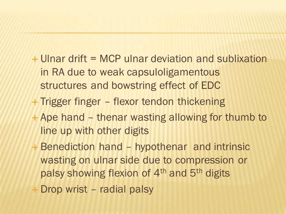 Ulnar drift = MCP ulnar deviation and sublixation in RA due to weak capsuloligamentous structures and bowstring effect of EDC