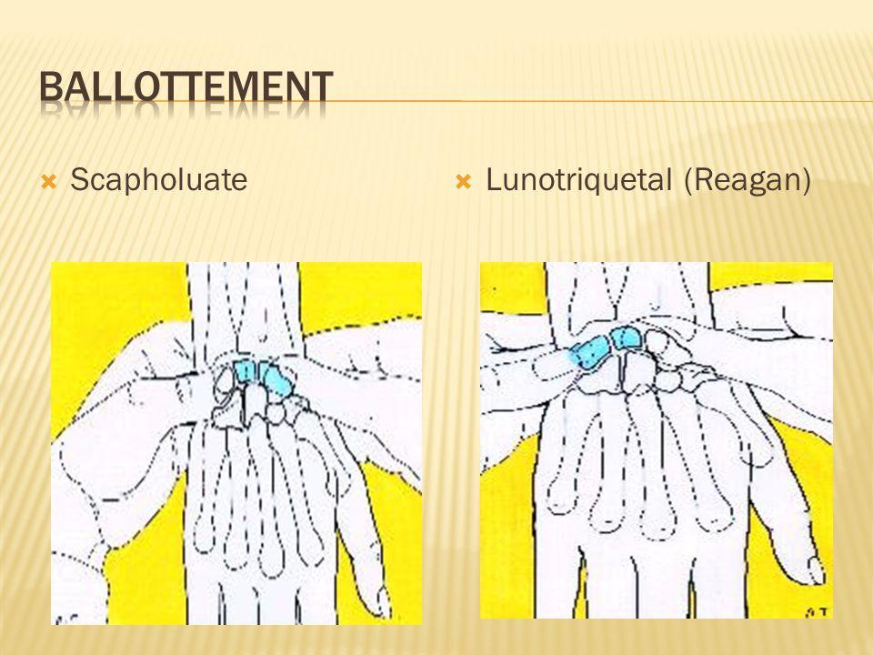 Ballottement Scapholuate Lunotriquetal (Reagan)