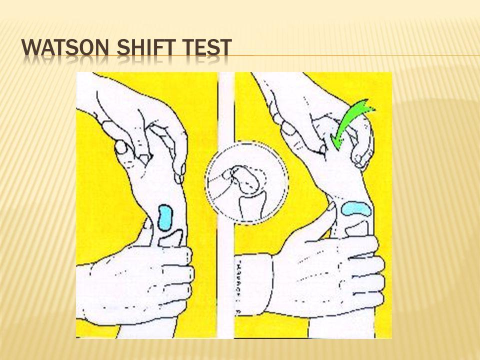 WATSON SHIFT TEST