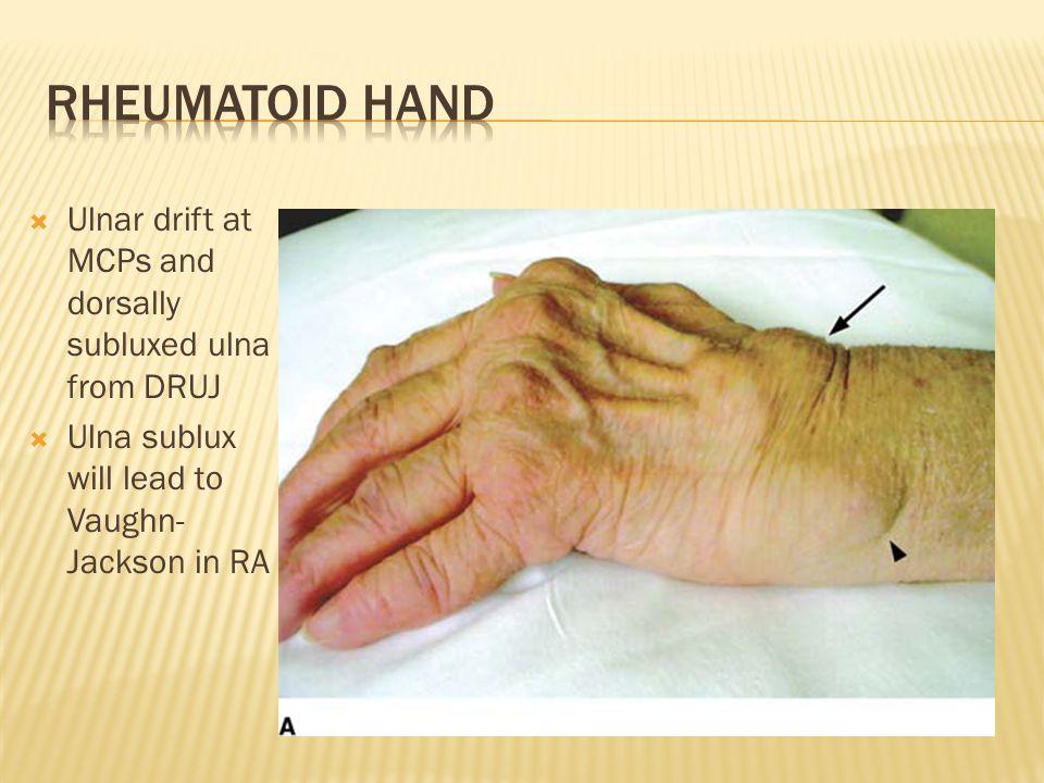Rheumatoid Hand Ulnar drift at MCPs and dorsally subluxed ulna from DRUJ.