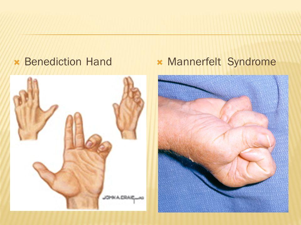 Benediction Hand Mannerfelt Syndrome