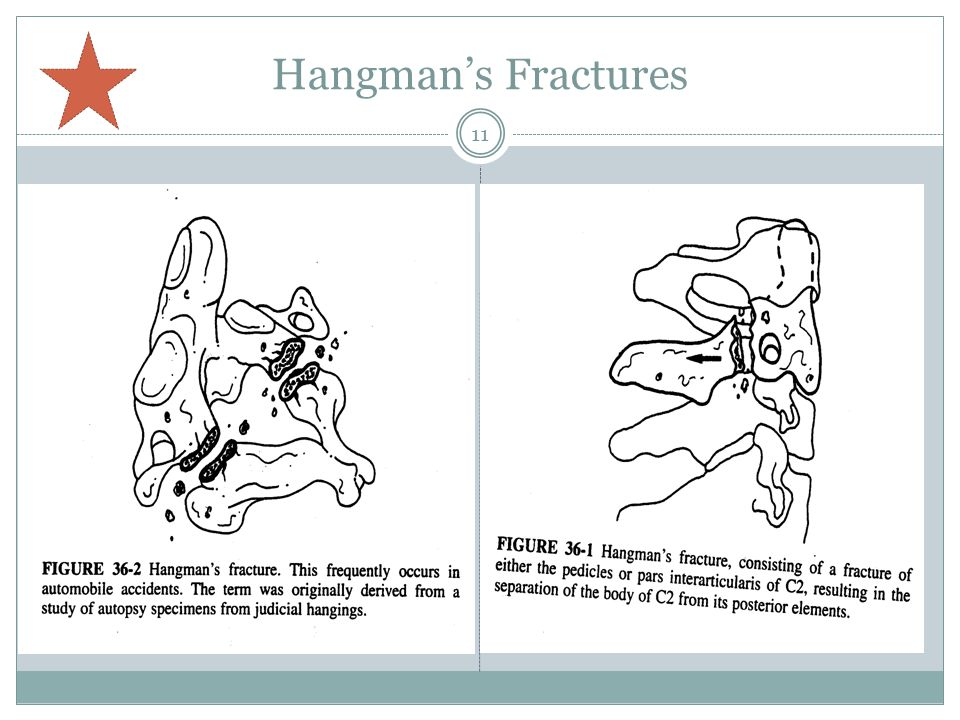 Hangman's Fractures Can be common in car accidents.
