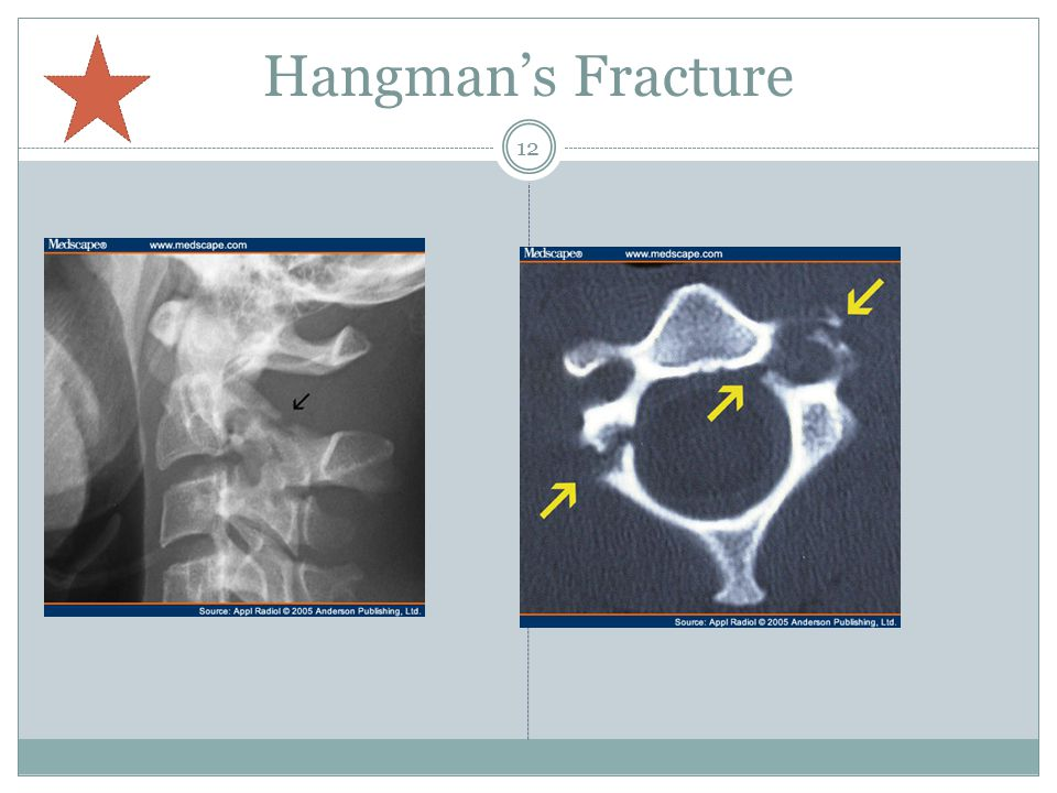 Hangman's Fracture Neuro Rehab: where the fragments go determines the nerve damage, could be very sever.