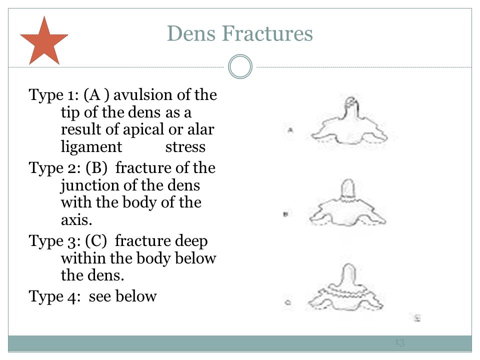 Dens Fractures Type 1: (A ) avulsion of the tip of the dens as a result of apical or alar ligament stress.