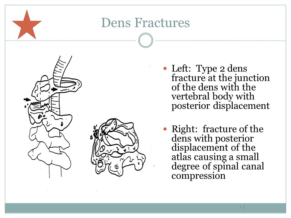 Dens Fractures Left: Type 2 dens fracture at the junction of the dens with the vertebral body with posterior displacement.