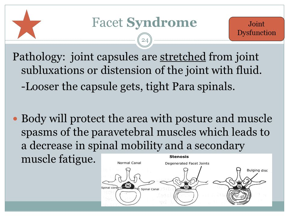 Facet Syndrome Joint Dysfunction. Pathology: joint capsules are stretched from joint subluxations or distension of the joint with fluid.