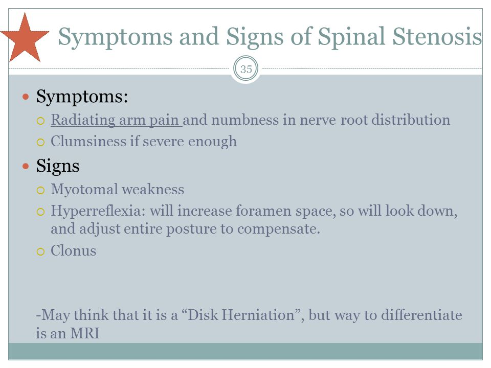 Symptoms and Signs of Spinal Stenosis