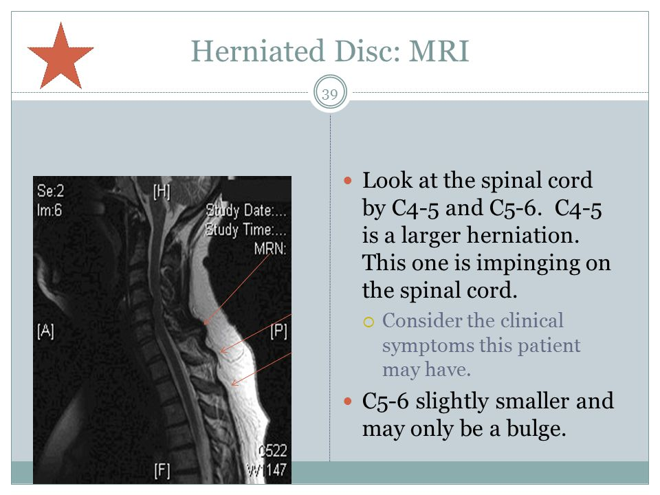 Herniated Disc: MRI Look at the spinal cord by C4-5 and C5-6. C4-5 is a larger herniation. This one is impinging on the spinal cord.