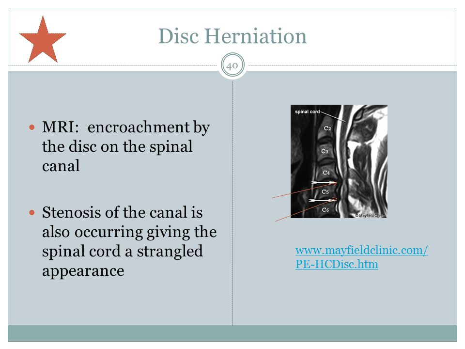 Disc Herniation MRI: encroachment by the disc on the spinal canal